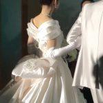 結婚式で背中のニキビ痕隠し